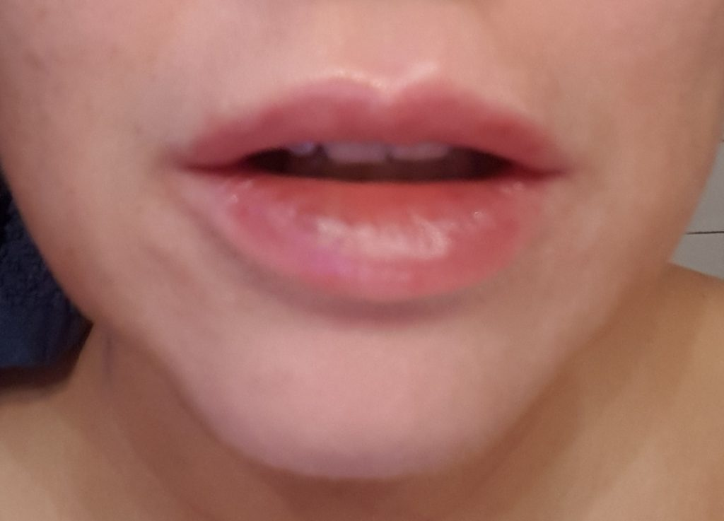 lippen-wowfaktor