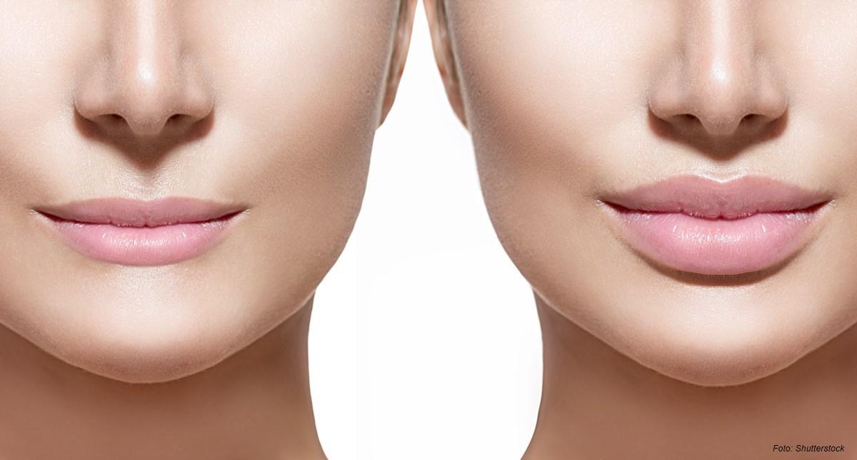 lippen-header