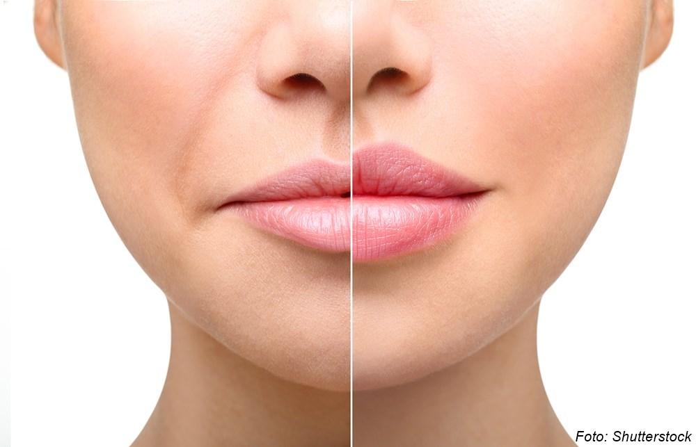 Lippenvergleich