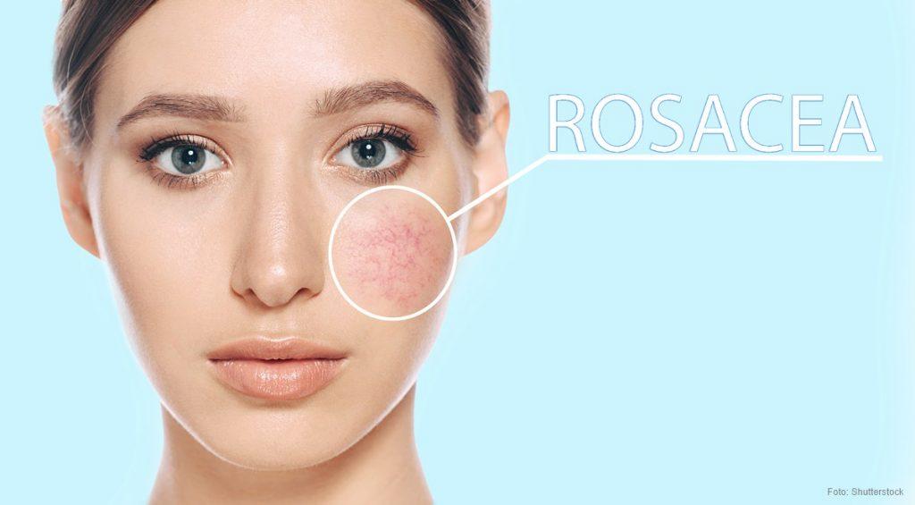 rosacea-face-woman