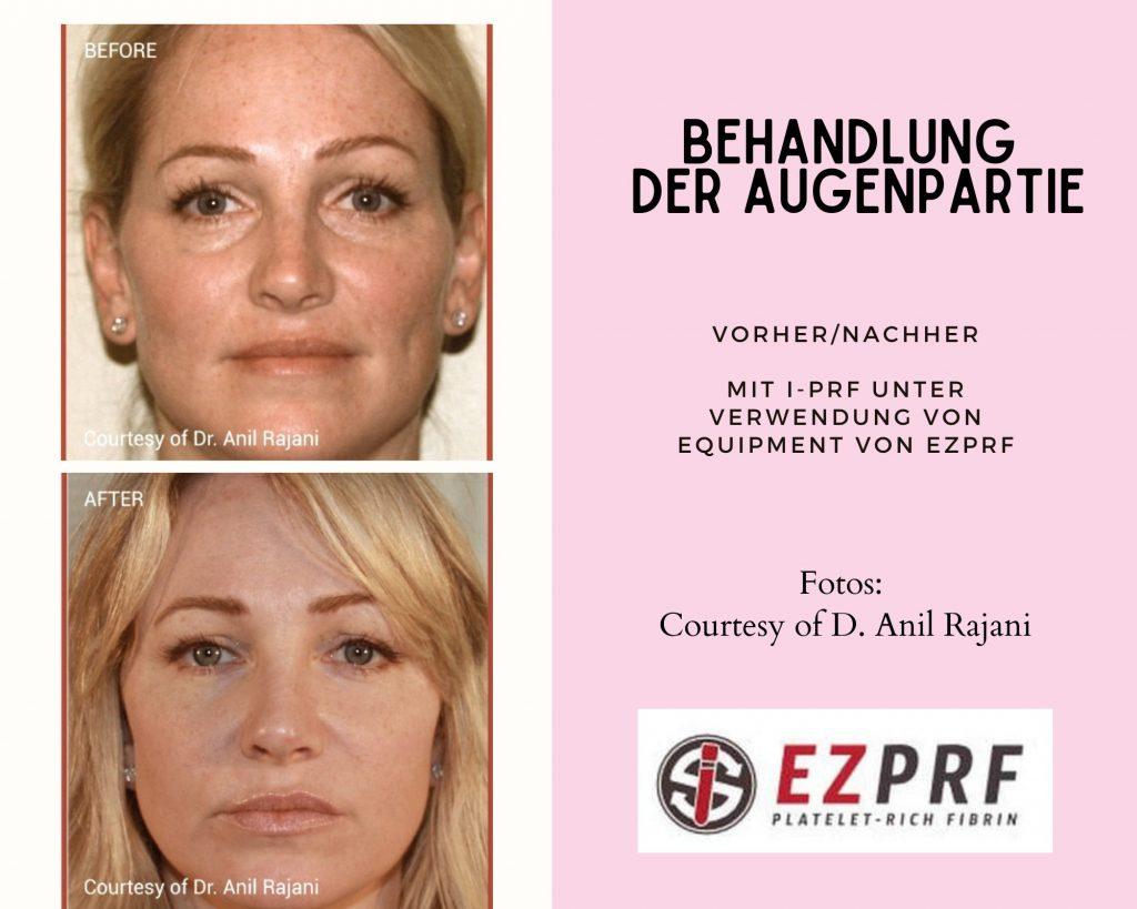 ezprf-vorher/nachher2